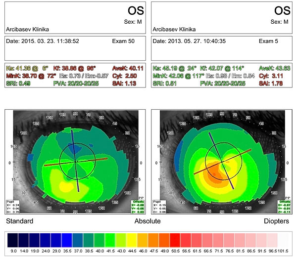 Results of diamond surgery for keratoconus after CXL