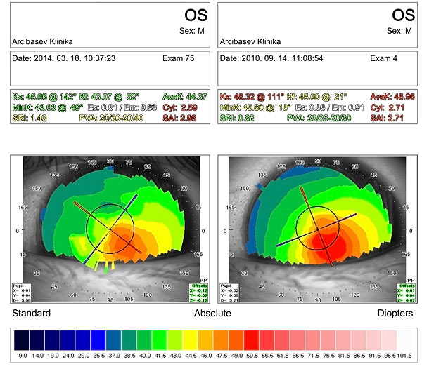 Results of diamond surgery for keratoconus stage III