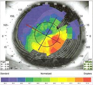 Keratoconus 6 Month Results