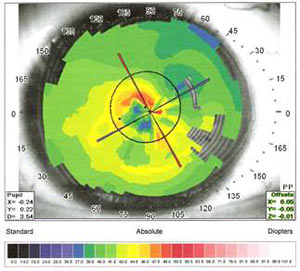 Results of diamond surgery for keratoconus late stage IV with central leucoma