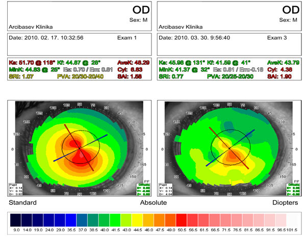Results of diamond surgery for keratoconus stage II