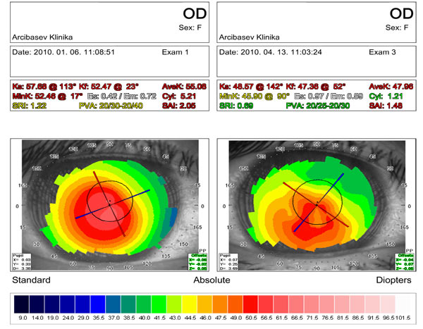 Results of diamond surgery for keratoconus stage III - IV