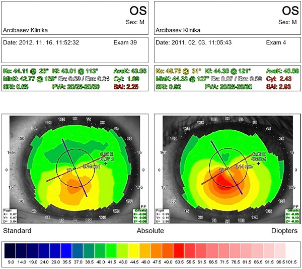 Results of diamond surgery for keratoconus stage II – III